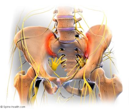 sacroiliac-joint-pain
